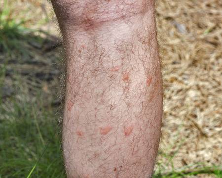 What Is And Isn T A Bed Bug Bite Bed Bug Cleveland