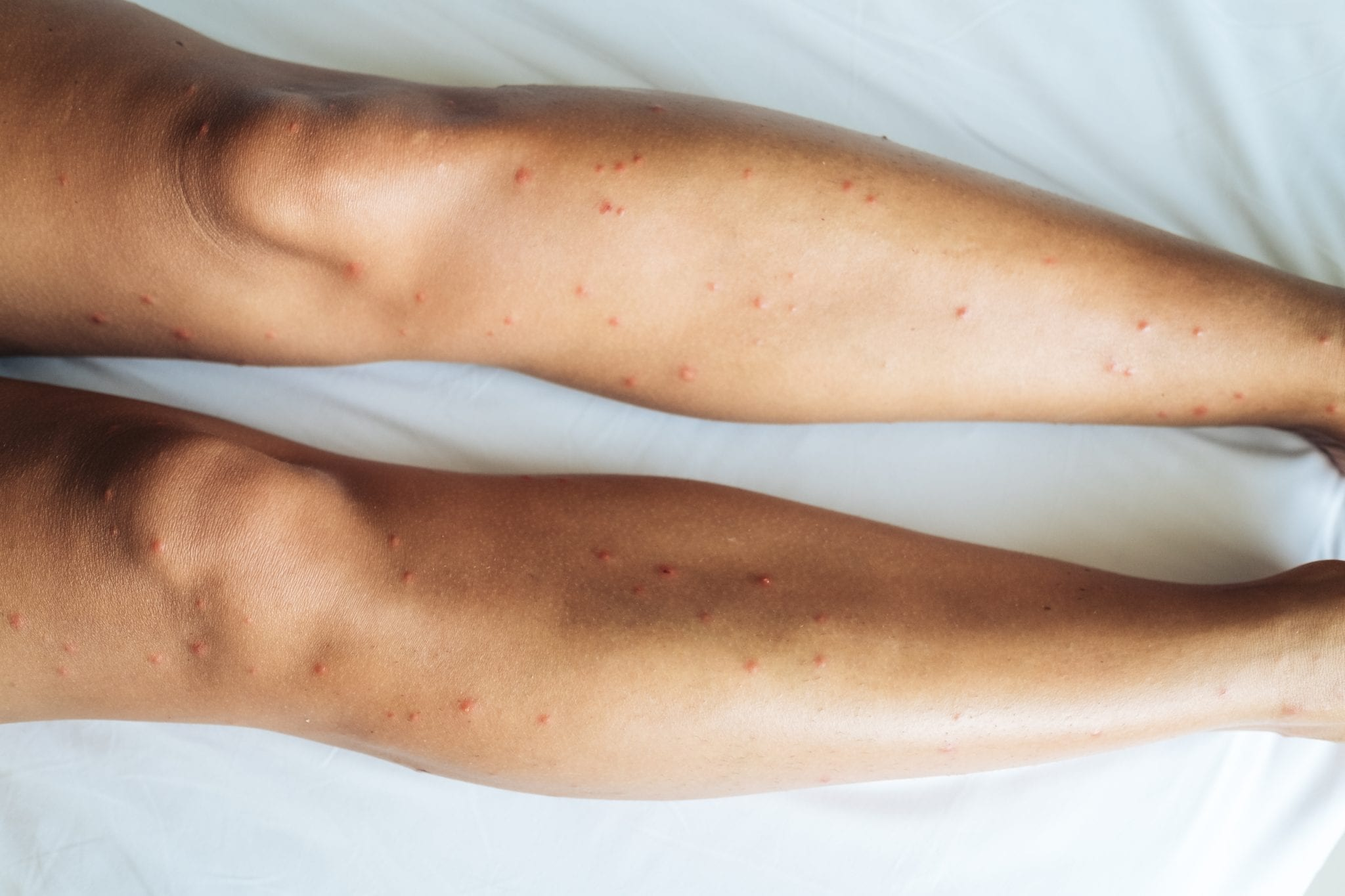 Female legs with many red spot and scar from sand fly bitesFemale legs with many red spot and scar from bed bug bites