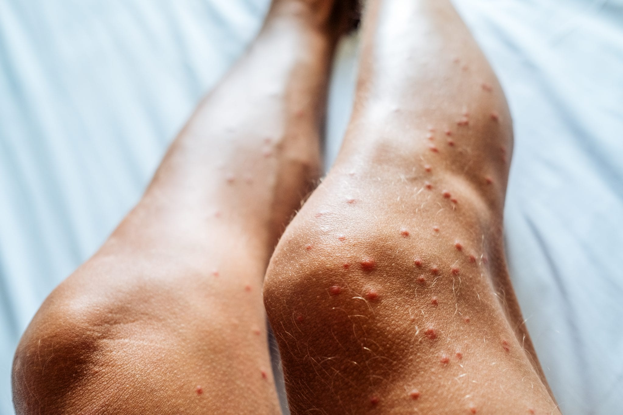 Person's legs with red bumps that are bug bites